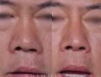 구순열 코의 교정