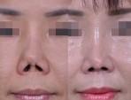구축된 코